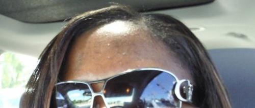 forehead1